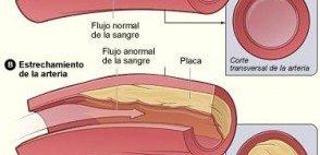 La enfermedad Coronaria y la obesidad
