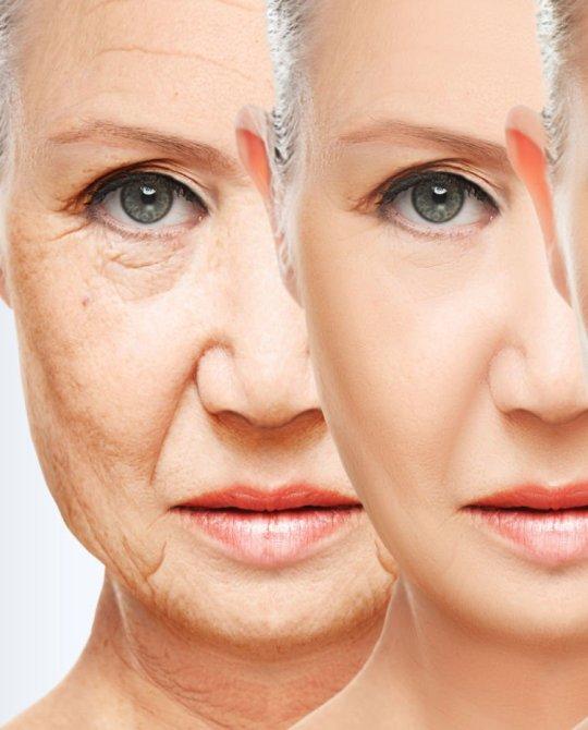 Anti invecchiamento
