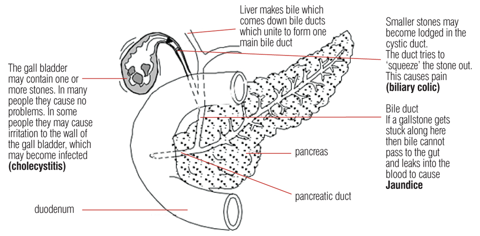 diagram of gallbladder pain