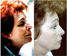 exoderm medical centers exoderm peel artificial hair implant