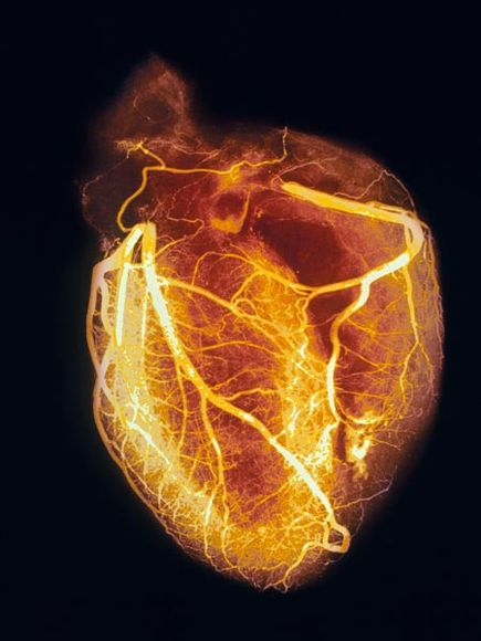 Angiogram of a healthy heart. Photograph by SPL/Photo Researchers, Inc. Thanks to National Geographic.