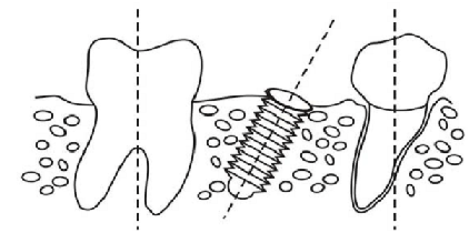 What is the minimal space between implants and implant
