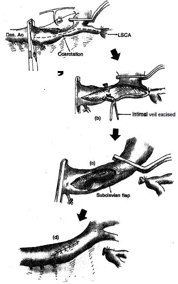 Explain subclavian flap aortoplasty, Biology