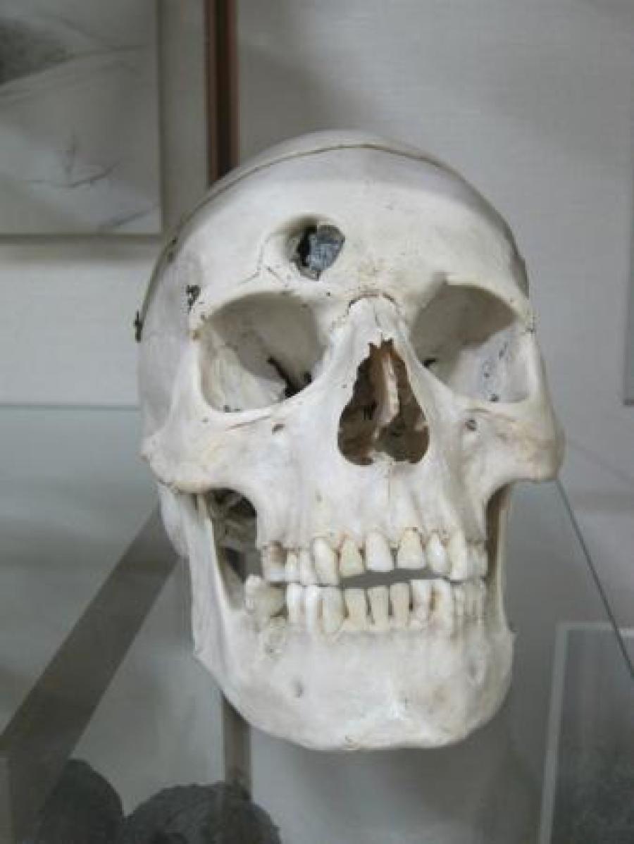 Phineus Gage's skull.