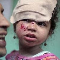 A girl wounded in the school strike.