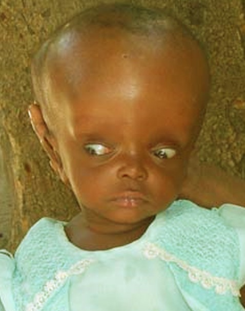 A child with Hydrocephalus