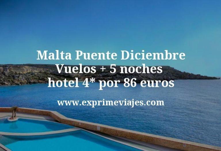 ¡Ganga! Malta Puente Diciembre: Vuelos + 5 noches hotel 4* por 86euros