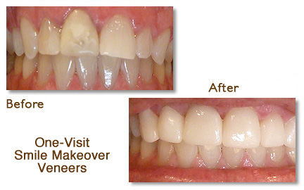 One-Visit Smile Makeover Porcelain Veneers Menlo Park