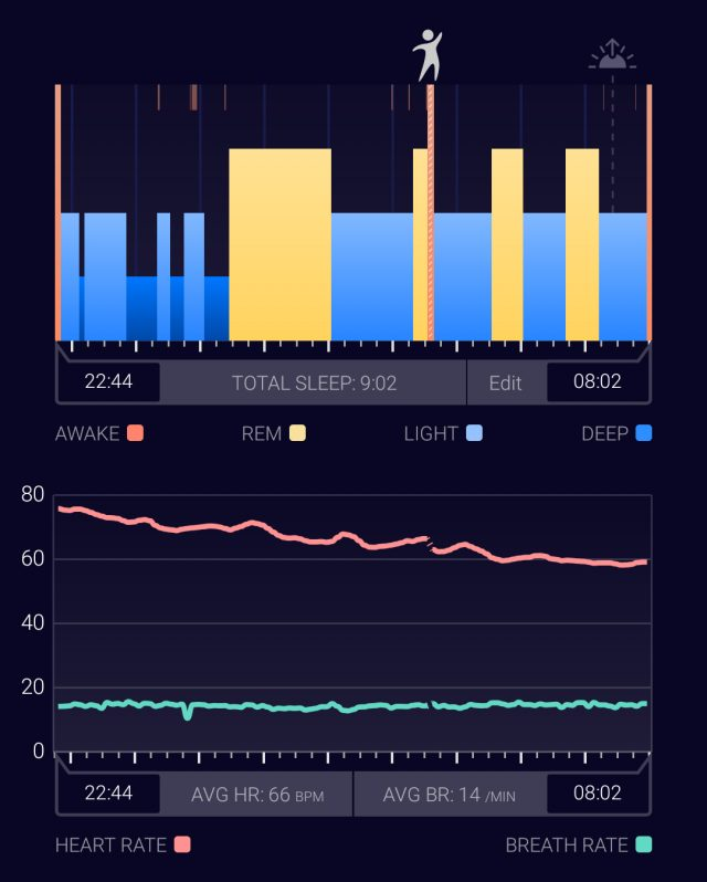 Sleeptracker's proprietary cloud and sensor with AI generate the most trusted sleep data I can trust