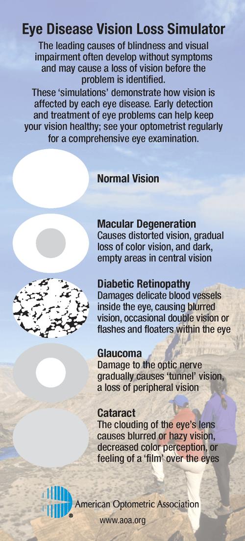 small resolution of vision loss simulator