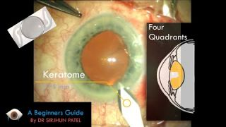 The Online Ophthalmology Community - Welcome to Eyedocs