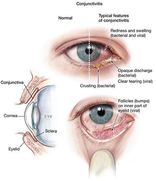 Image result for Types of Eye Doctor Specialists