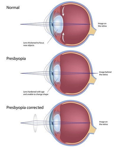 eye diagram not labeled riding lawn mower dealers presbyopia: a complete guide for old eyes
