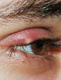 Stye; Gland; Eyelid; Sebaceous Gland;