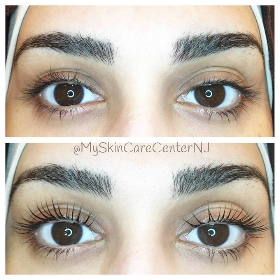 special 70 Lash lift gallery before  after pics bergen