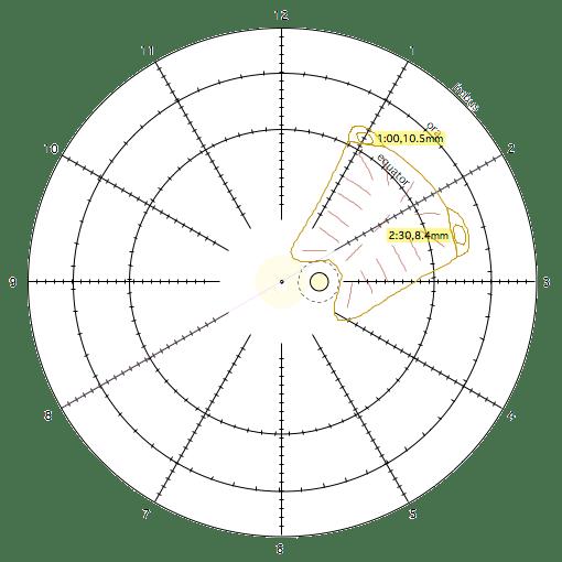 Suture Coordinates