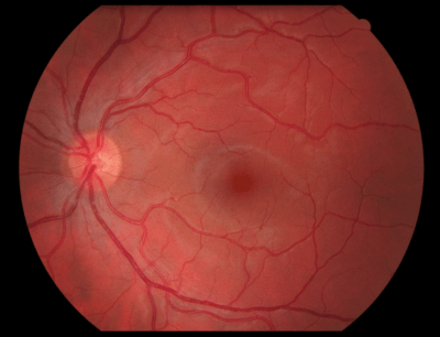 Retinal Imaging - Today's Vision Beaumont  Digital Retinal Scan
