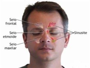 Take-care-for-a-sinus-headache