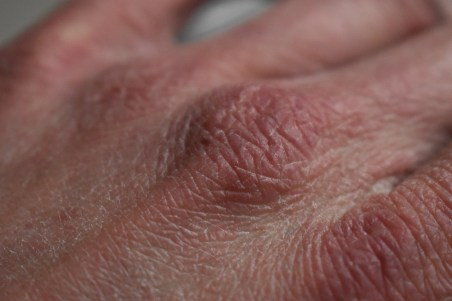 close up of the top of a hand