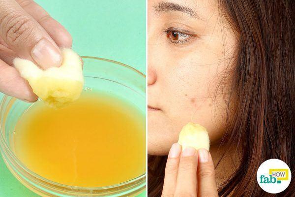 potato juice for dark spots