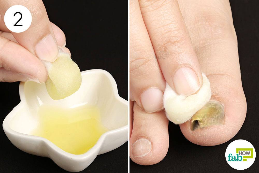 Treat The Nail Fungus With Essential Oil Blend