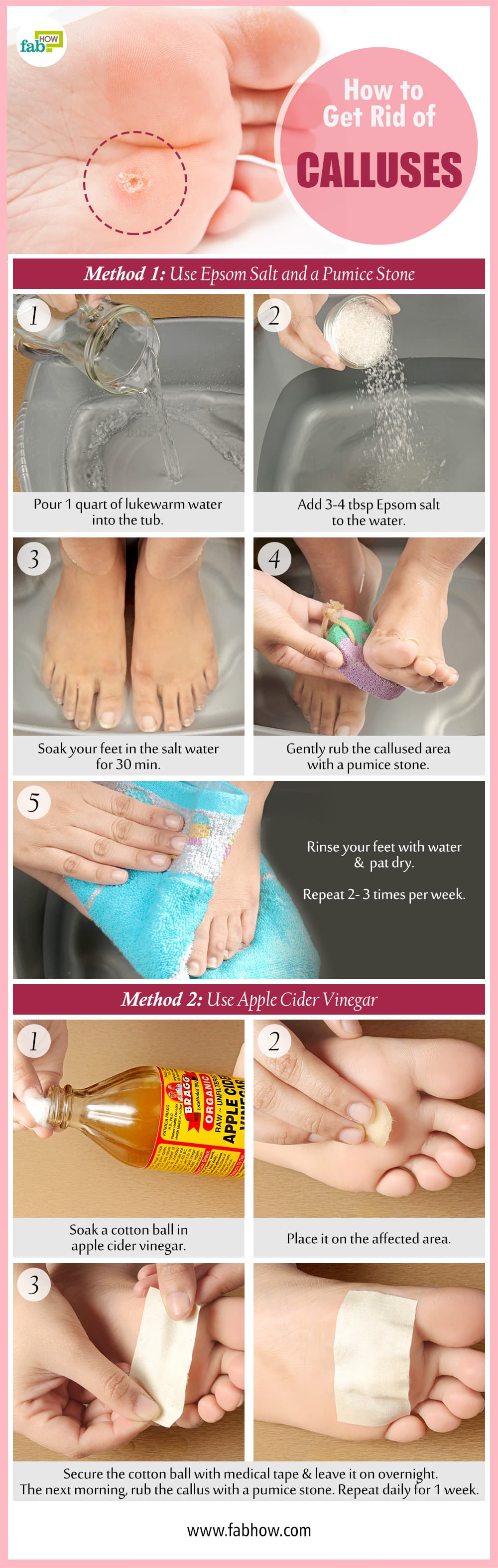 How to Remove Calluses on Feet  Fab How