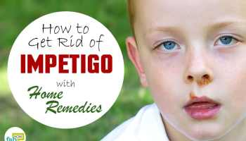 How to get rid of a cold sore overnight fab how how to get rid of impetigo with home remedies ccuart Images