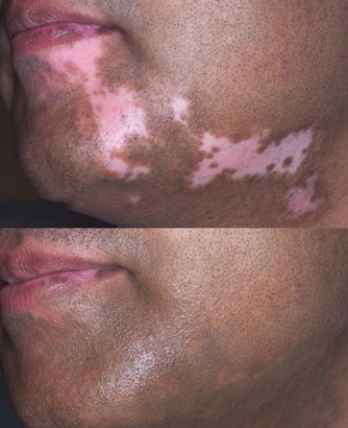 Paramedical Tattooing Skin Discoloration Camouflage