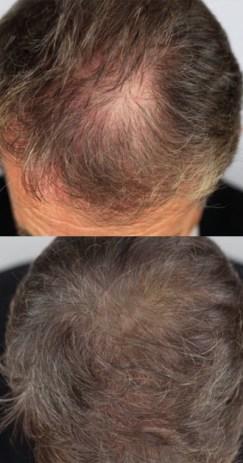 Hair-Follicle-10