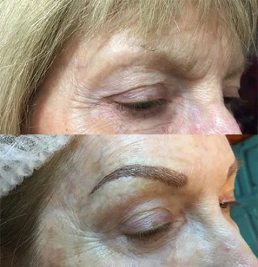 microblading-before-and-after-25