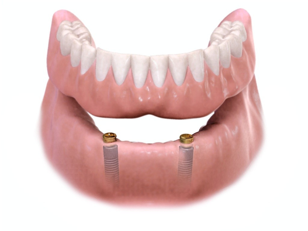 Removable Implant-Supported Overdenture | Removable ...