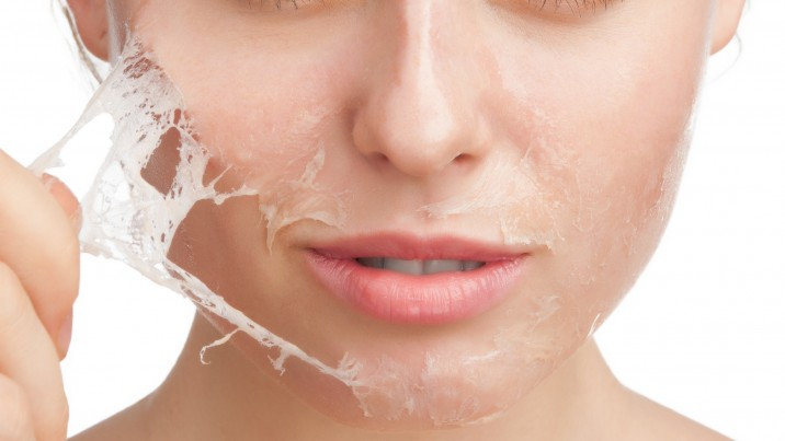 Deep chemical peel facial apologise, that can