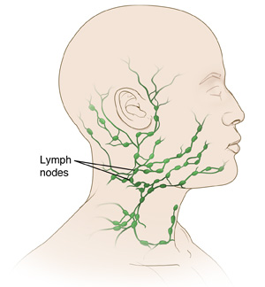 Excisional Biopsy: Neck Lymph Node