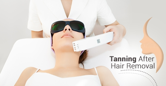 Tanning After Hair Removal