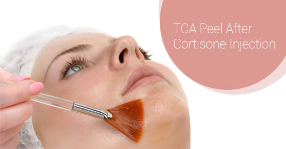 TCA Peel After Cortisone Injection