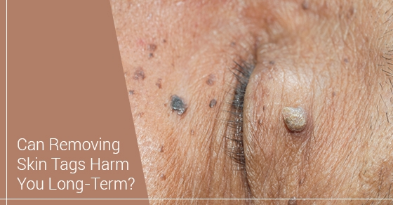 Can Removing Skin Tags Harm You Long-Term?