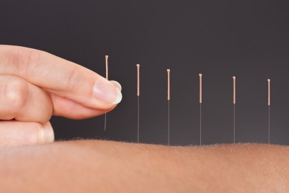 Acupuncture, Staff, location, rehab clinic, rehabilitation clinic, fairview, Wynford, physiotherapy, physiotherapists, massage, massage therapy, RMT, Osteopathy, Osteopath, Chiropractor