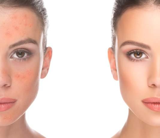 acne redness faiza beauty cream