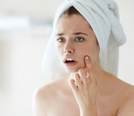 acne free complexion faiza beauty cream