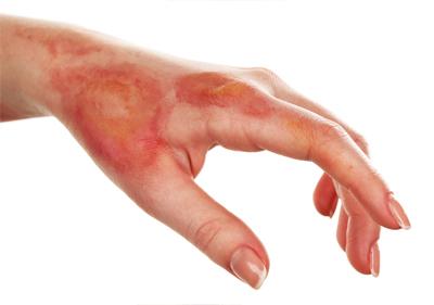 skin burn faiza beauty cream