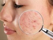 Neviete si poradiť s akné? Prekvapia vás účinky tejto masti