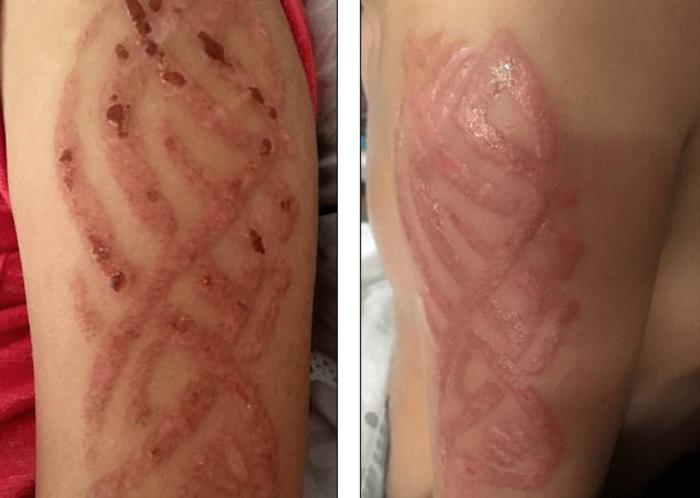Atención Padres Este Tipo De Tatuaje Temporal Para Niños Dejó A
