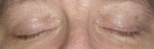 Family Clan Blog Jerome Alexander Lashtech Eye Lash Enhancing Serum Week 2