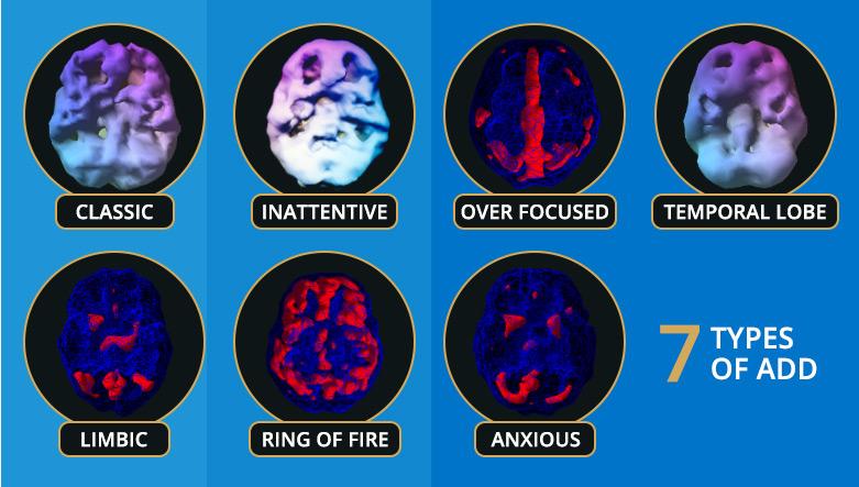 ADHD LENS Neurofeedback Treatment