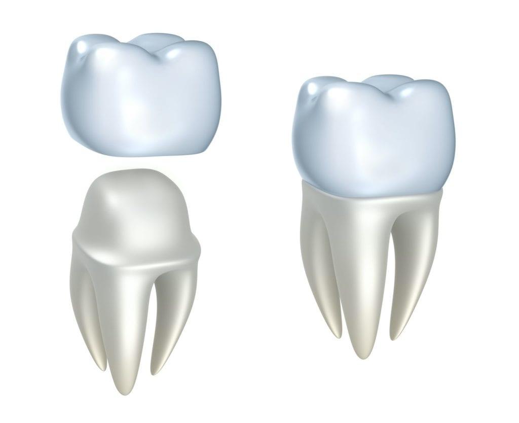 louisville, ky dentist