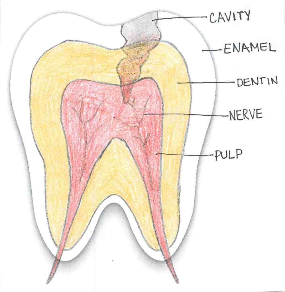 medium resolution of photo of cavity through layers of tooth