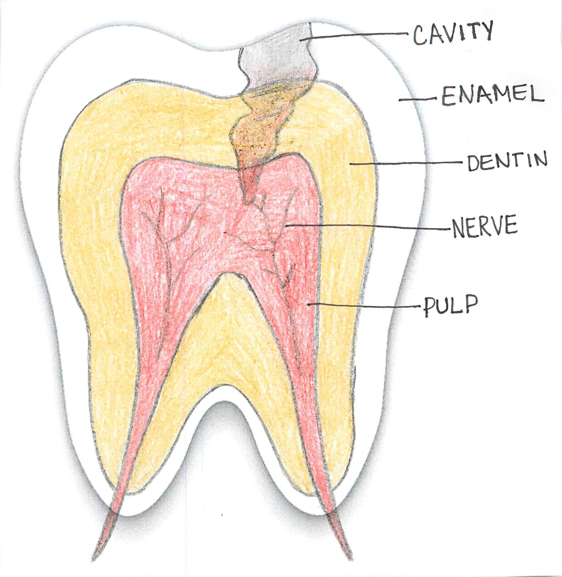 hight resolution of photo of cavity through layers of tooth