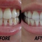テープ(シール)を貼るだけで歯を白くするホワイトニング