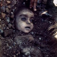 Bhopal gas disaster girl