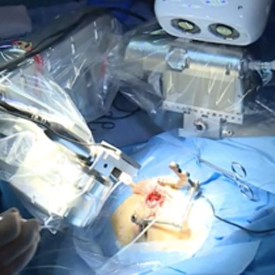 Meet the robot that's fifty times faster than a brain surgeon